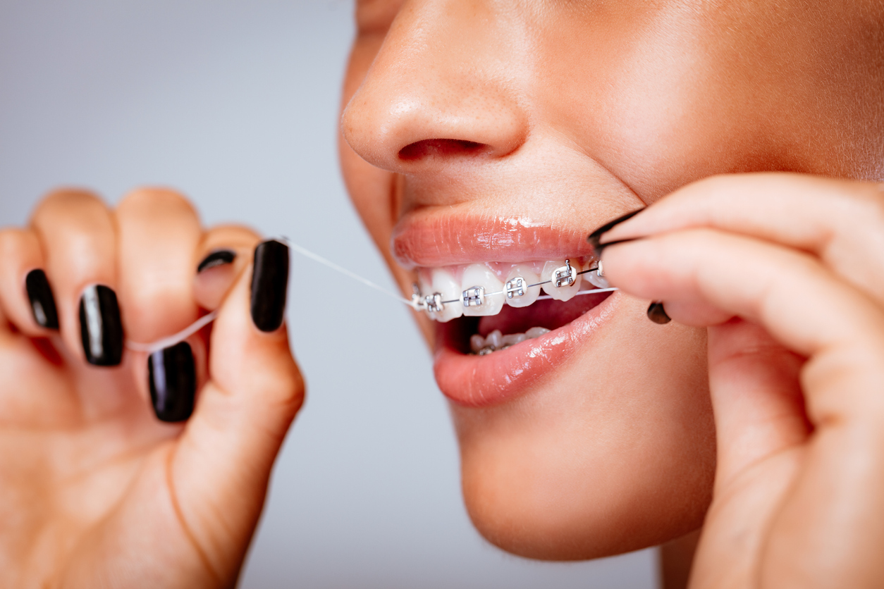 Care and cleaning of braces