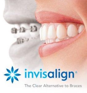 Lake Jackson Orthodontic options for Invisalign