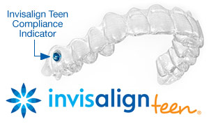 Invisalign option for adults and teens in Lake Jackson, TX at Henson Orthodontics